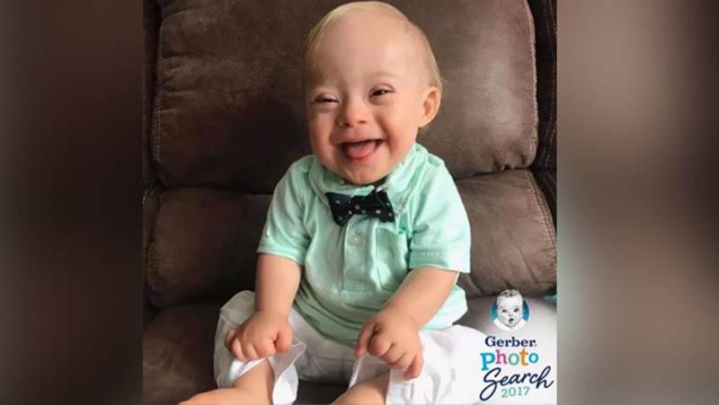 Lucas, primer bebé con síndrome de Down elegido como imagen de Gerber