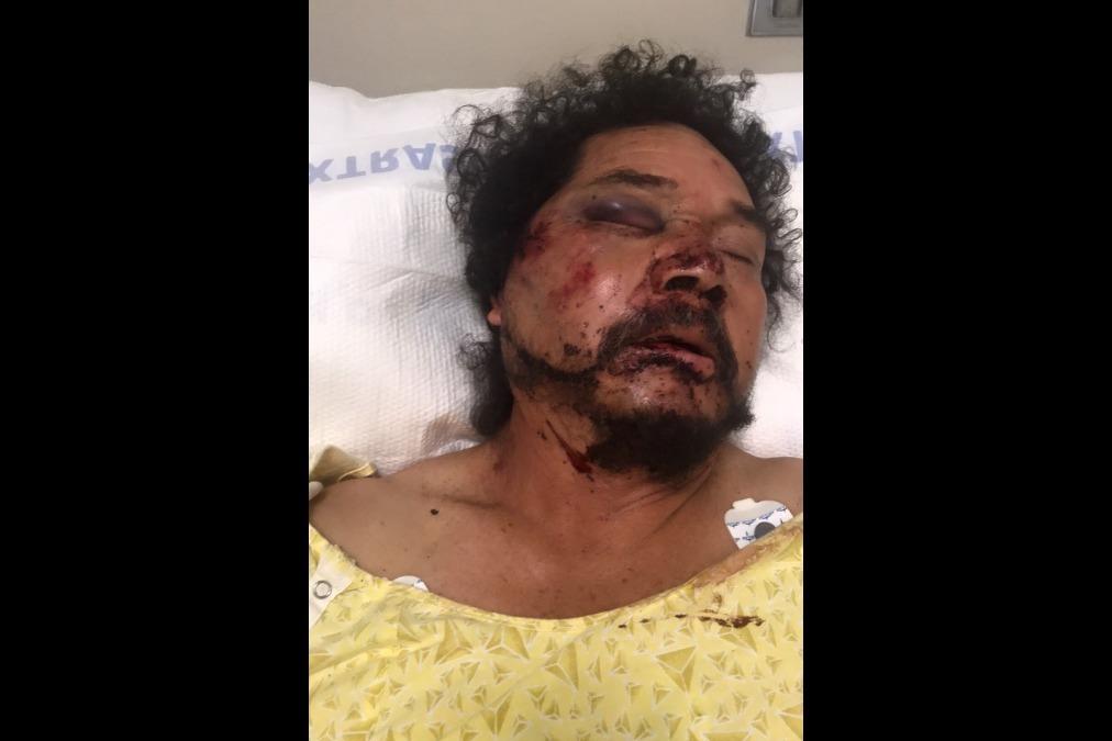 Afroamericanos golpean a migrante mexicano